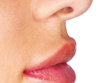 Lippenkorrektur für schöne volle Lippen